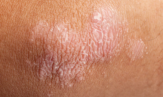 bigstock-psoriasis-on-elbow-skin-65113735-1